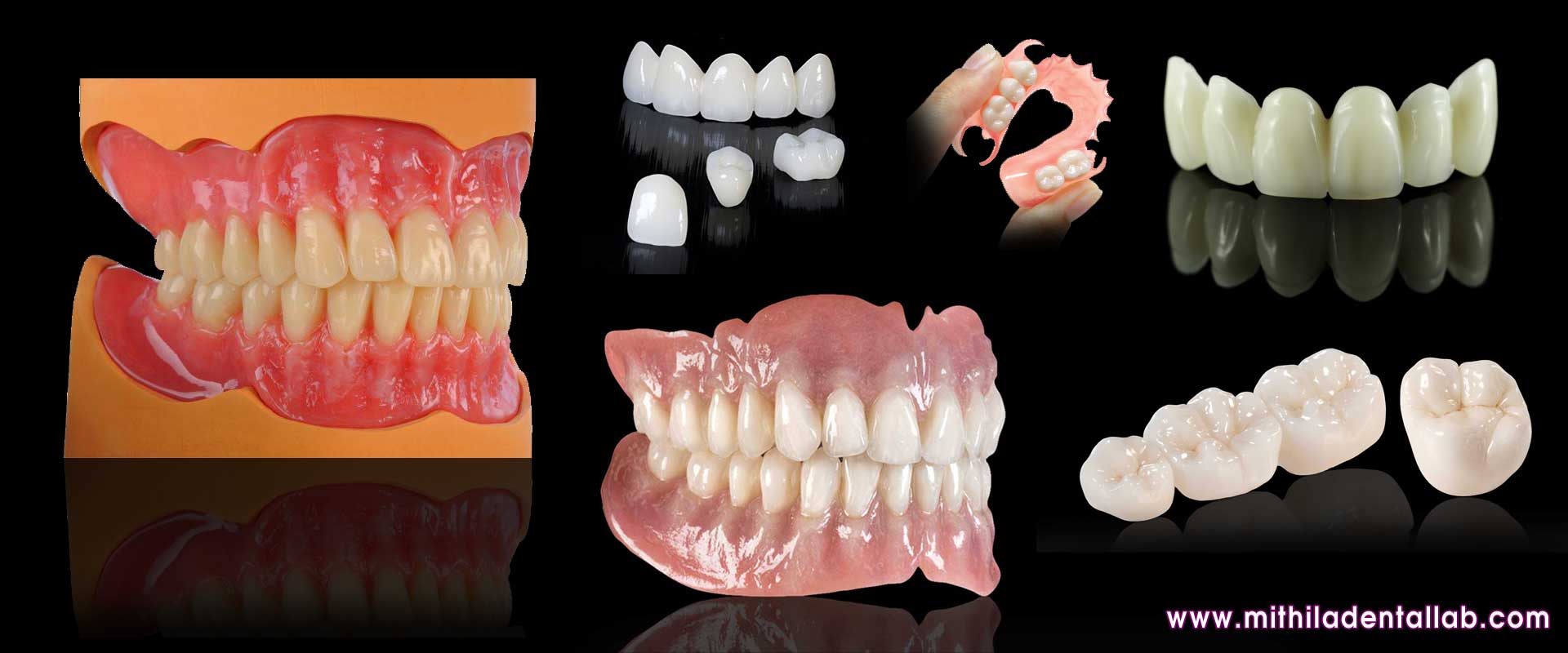 denture manufacturers exporters suppliers in india punjab ludhiana