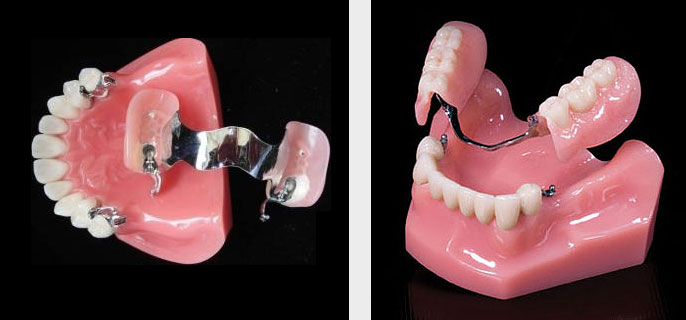 cast partial denture manufacturers exporters suppliers from India, Punjab Ludhiana